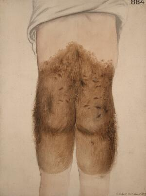 view Congenital hairy mole affecting the lower back, buttocks and thighs of a boy