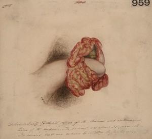 view Warty epithelioma of the prepuce