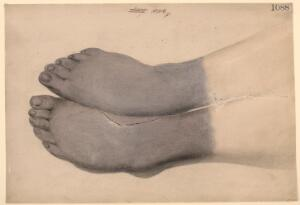 view Dry gangrene of both feet from frostbite