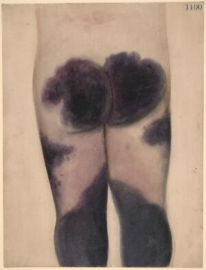 view Buttocks from a case of symmetrical gangrene