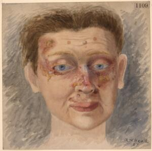 view Face of a woman affected with tubercular lupus