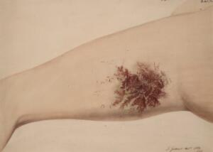 view Degenerating naevus on the thigh