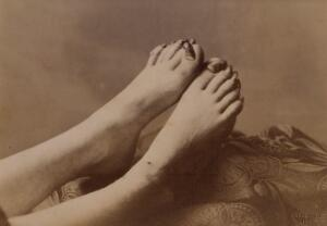view Feet of a girl affected with onychogryphosis