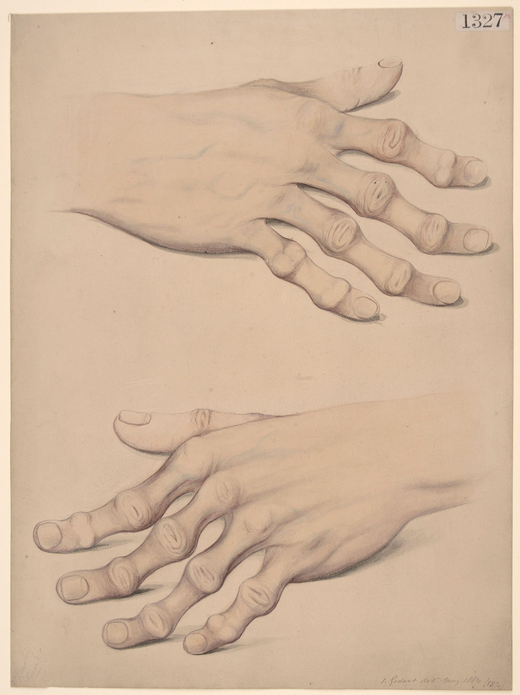 Deformity of the hands, simulating rheumatoid arthritis