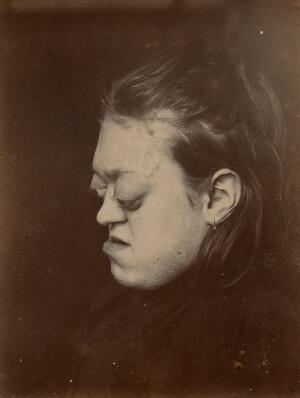 view Girl aged 17 years with marked proptosis