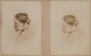 view Stereoscopic photograph of a woman showing deformity resulting from osteitis deformans