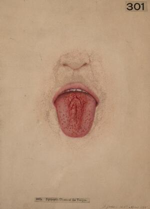 view Dyspeptic ulcers of the tongue