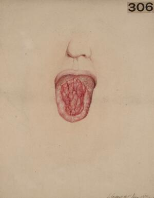 view Tongue from a case of congenital syphilis