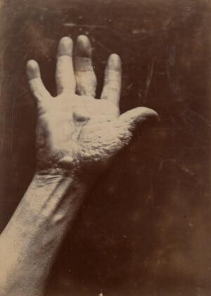 view Palm of the right hand of a man suffering from chiro-pompholyx