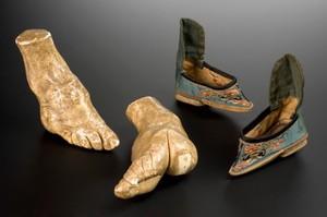 view Plaster model of left foot deformed by foot-binding