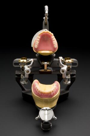 view Upper and lower dentures set in an articulator