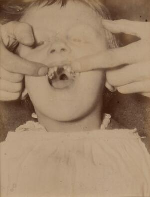 view Girl exhibiting a cleft of the soft palate