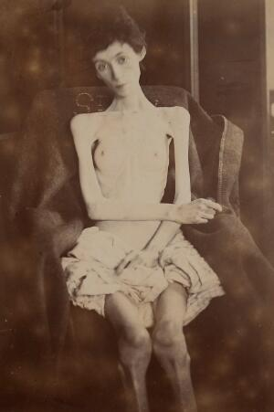 view Woman suffering from anorexia nervosa