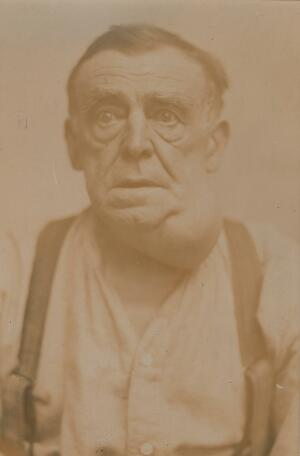 view Man with a tumour of the neck
