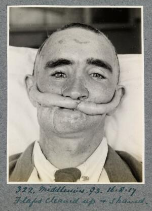 view WW1 Plastic surgery cases