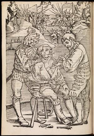 view Feldtbuch der Wundartzney, newlich getruckt und gebessert.