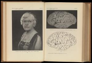 view Helen Hamilton Gardener and her brain