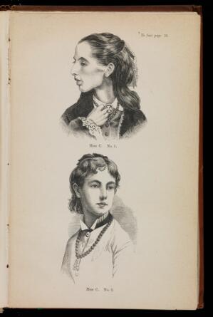 view Two Woodcuts showing Miss C before and after treatment