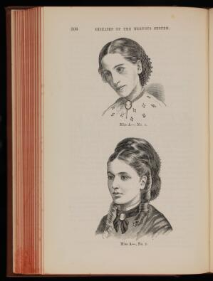 view Two Woodcuts showing Miss A before and after treatment