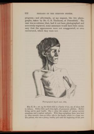 view Miss K. R- aged 14, before treatment for anorexia