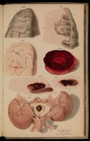 view Figures 246-252. Tuberculosis in the brain.