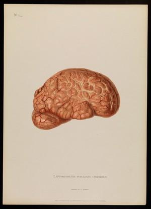 view NI, Leptomeningitis purulenta cerebralis. Alfred Kast
