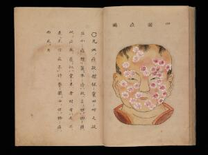 view Smallpox illustration, Japanese manuscript, c. 1720