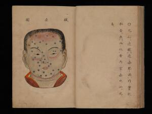 view Smallpox illustration, Japanese manuscript, c. 1720