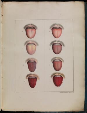 view Different stages of yellow fever, 1820