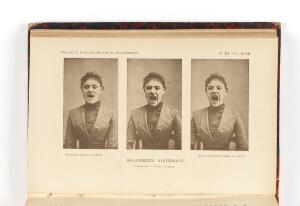 view Plate XVIII: Three photos in a series showing a hysterical...