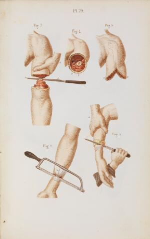 view Plate 29, Amputation of the upper and lower arm.