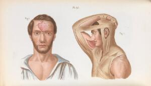 view Plate 45, Plastic surgery of the nose.