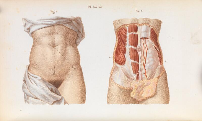 Plate 54 Bis Anatomy Of Abdominal Surgery Wellcome Collection
