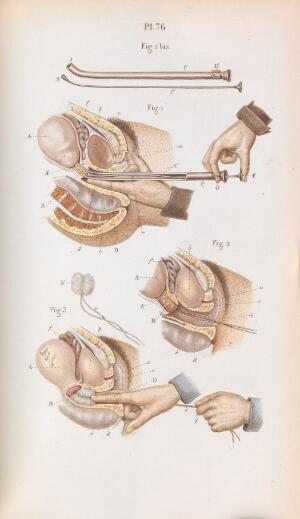 view Plate 76, Surgery of the cervix and uterus.