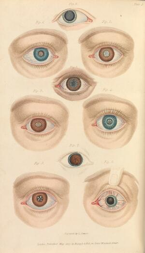 view Plate 3, Illustration of various types of cataracts.