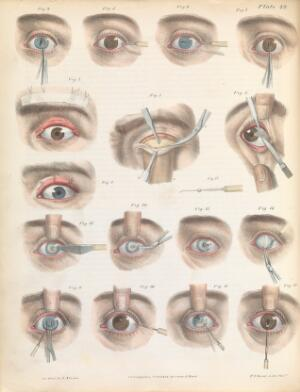 view Plate XLIX. Various surgical treatments on the eye.