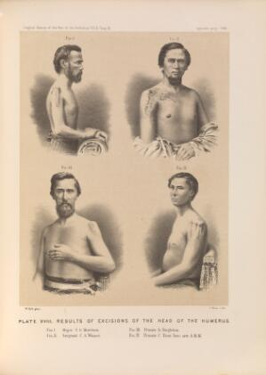 view Plate XVIII. Results of excisions of the head of the humerus. American Civil War (1861-65).