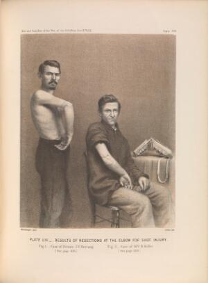 view Plate LIV. Results of resections at the elbow for shot injury. American Civil War (1861-65).