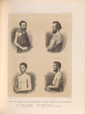 view Plate XVII. Results of excisions of the head of the humerus. American Civil War (1861-65).