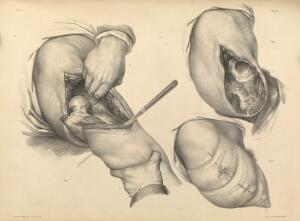 view Pl. 88. Amputation of the leg at the hip, and stump closure.