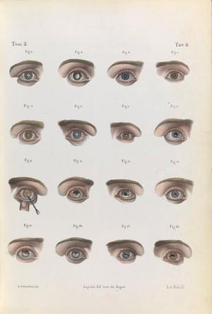 view Plate 8. Illustration of various eye diseases