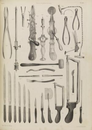 view Plate 55. Surgical instruments for operating on the bones.