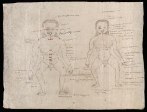 view Human anatomy, ink drawing, Tibet.