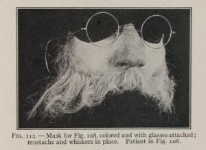 view Fig. 112. - Mask for Fig. 108, colored and with glasses attached; mustache and whiskers in place. Patient in Fig. 108.