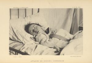 view Female patient with hysteria-induced narcolepsy.