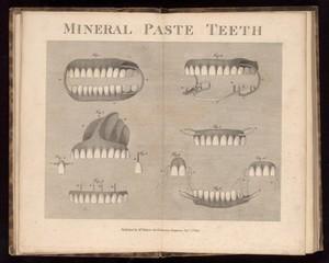 view Various dentures, 19th century.