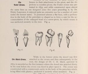 view Dental crowns.