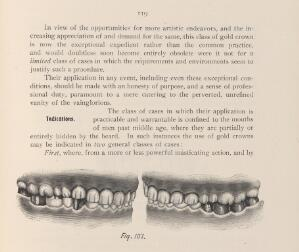view Crowns fixed onto the anterior and posterior teeth.