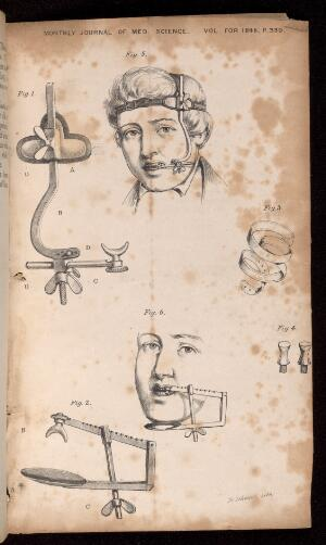 view Apparatus for arresting hemorrhage after the extraction of teeth. William Alfred Roberts, 1846. From the Monthly Journal of Medical Science, Volume May 1846, p. 339.