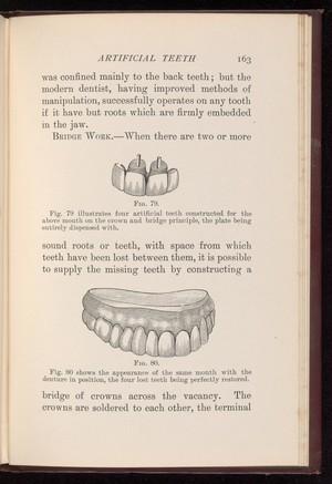 view Dental bridge and denture